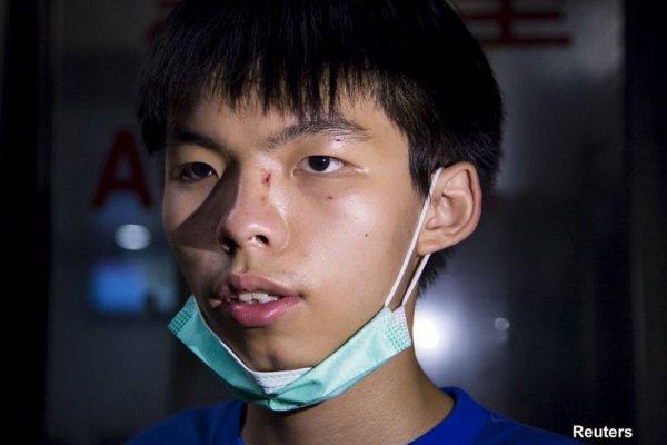Thủ lĩnh Cách Mạng Ô tại Hong Kong bị côn đồ tấn công