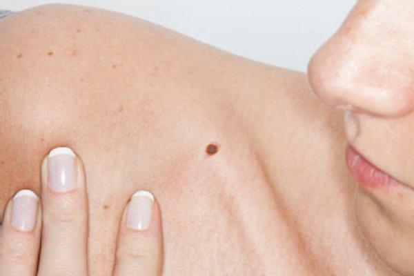 Nếu bạn có nốt ruồi tại những vị trí sau đây… nên xóa đi!