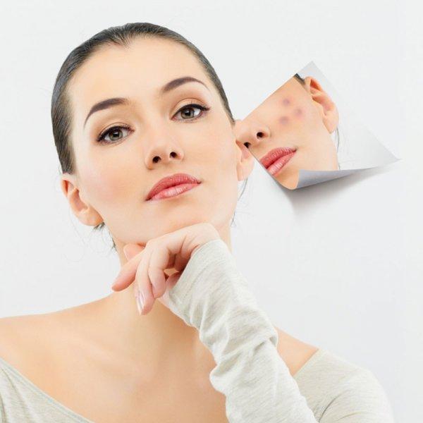 Bật mí 5 cách trị mụn đầu đen hiệu quả từ thiên nhiên