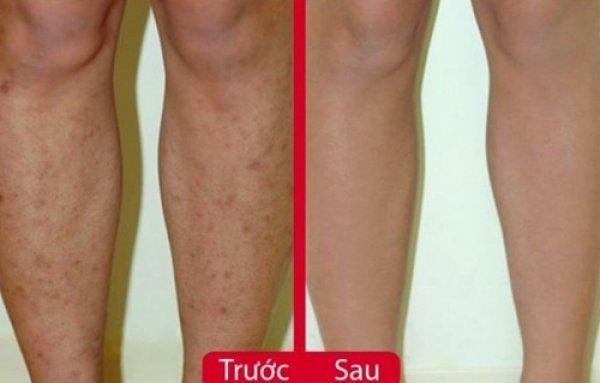 Chỉ với 1 củ hành tím, sẹo thâm lâu năm ở chân cũng phải biến mất