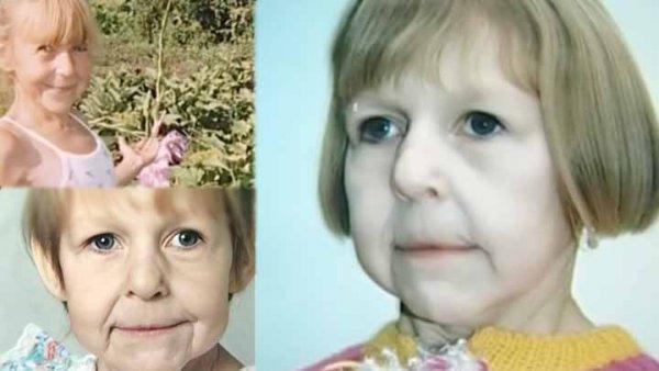 Hành trình 21 năm đầy nghị lực của cô bé có khuôn mặt bà cụ