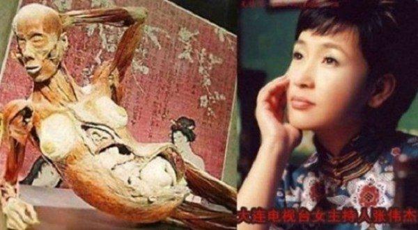 Người tình Bạc Hy Lai bị giết làm mẫu vật triển lãm