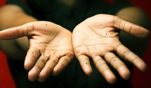 Giải mã mọi thứ về nốt ruồi nằm trên các đốt ngón tay
