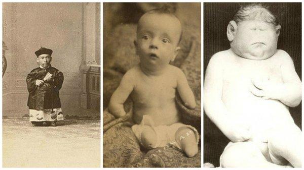 Những bức ảnh tư liệu phơi bày thực trạng thế kỷ 19 khiến người xem ám ảnh