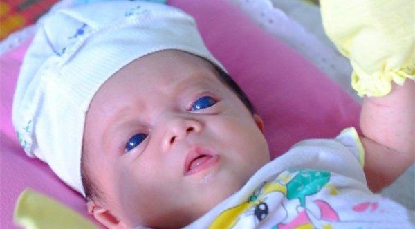 Em bé Đồng Nai sinh ra với đôi mắt xanh kỳ lạ