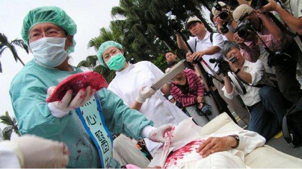 Mỹ: Bang Arizona kêu gọi hành động chống lại nạn mổ cướp nội tạng ở Trung Quốc