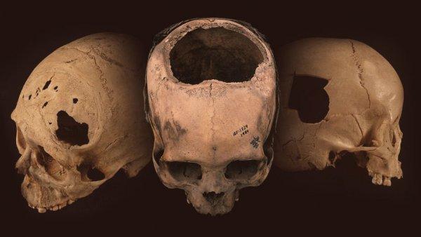 Người Inca đã sở hữu kỹ thuật phẫu thuật sọ từ 2.000 năm trước