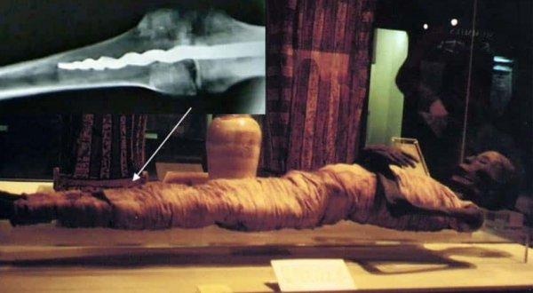 Phát hiện đinh vít trong xác ướp 2600 năm: Ca phẫu thuật chỉnh hình đi trước thời đại?