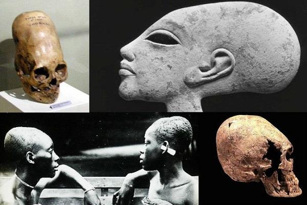 Bí ẩn những hộp sọ khác thường được phát hiện trên Trái đất. (Ảnh: Internet)