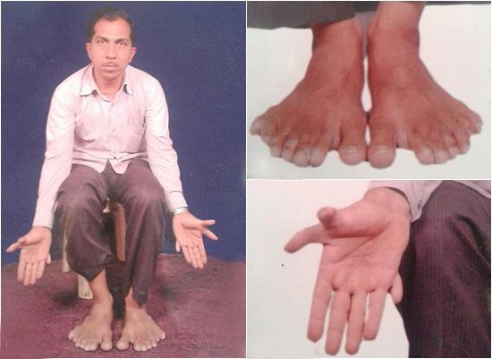 Căn bệnh hiếm gặp khiến Devendra Suthar có tổng cộng 28 ngón chân và tay.