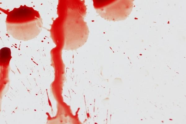 Mơ thấy máu bắn lên mặt hoặc trên mặt có vết máu: cũng thường là điềm không hay, ám chỉ rằng bạn sẽ phải đảm nhận một trọng trách vượt quá khả năng của bạn.