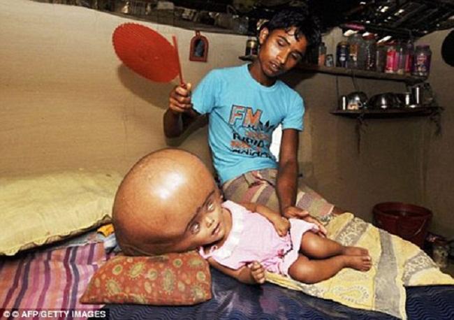 Được phát hiện trong một ngôi làng nghèo khó, Roona Begum từng được báo không sống quá 1 tuổi.