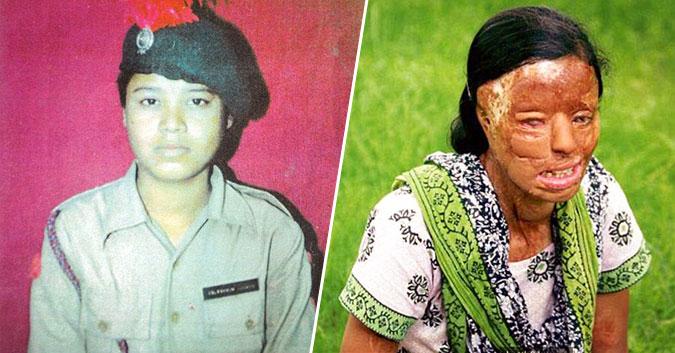 Cô gái Ấn Độ bị tạt axit gần mù mắt, phải phẫu thuật 27 lần sau 14 năm giờ ra sao?1