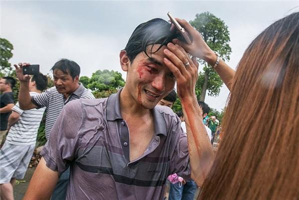 Một người dân bị thương vì bị cột sóng lớn đánh ngã
