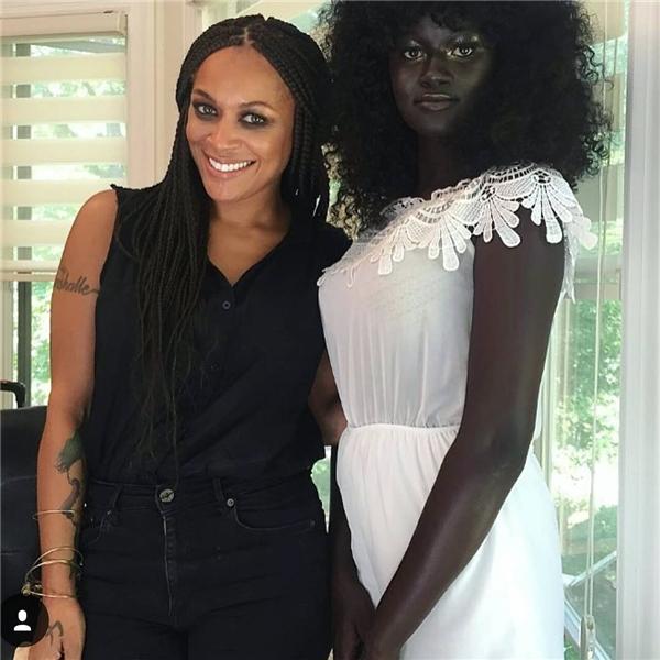 """Châu Phi: Người mẫu trẻ có làn da """"độc nhất vô nhị"""".2"""