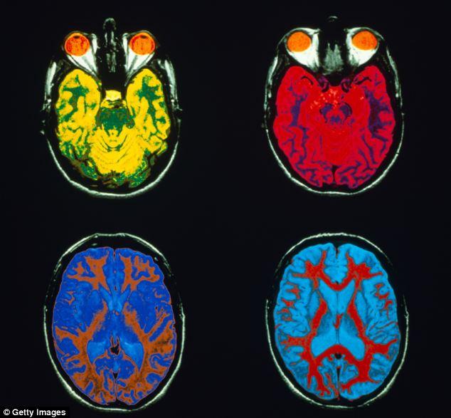 Não liên tục hình thành hoặc phá vỡ các mối liên hệ thần kinh và phát triển các tế bào mới