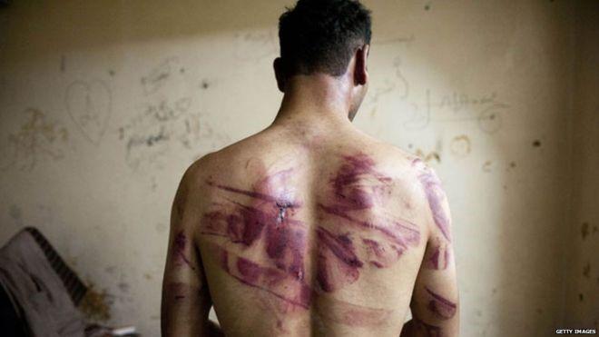 Những người sống sót khỏi nhà tù Syria kể họ có thể bị đánh đập ngay lúc vừa bị bắt xong, trên đường di chuyển và thậm chí chưa đặt chân đến nơi giam giữ. Ảnh minh họa: Getty Image