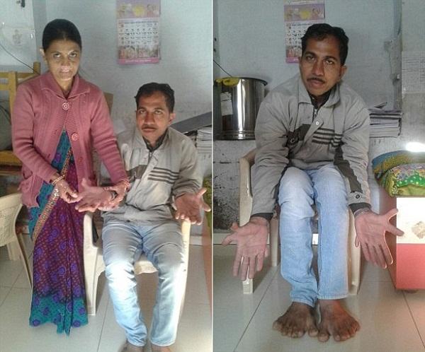 Lũ trẻluôn cảm thấy thích thú và bật cười khi thấy Devendralàm các thủ thuật tính toán với tay chân của mình.