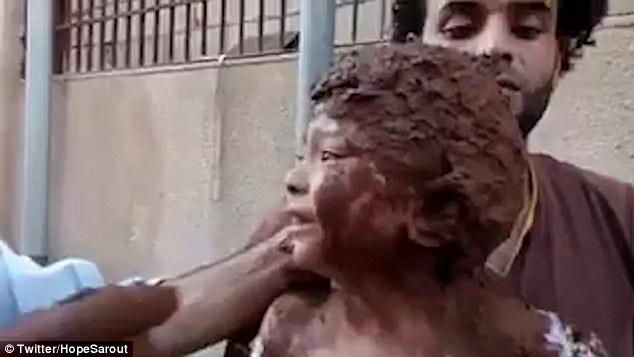 Một em bé được lực lượng cứu hộ đắp bùn để làm xoa dịu những vết bỏng trên cơ thể.
