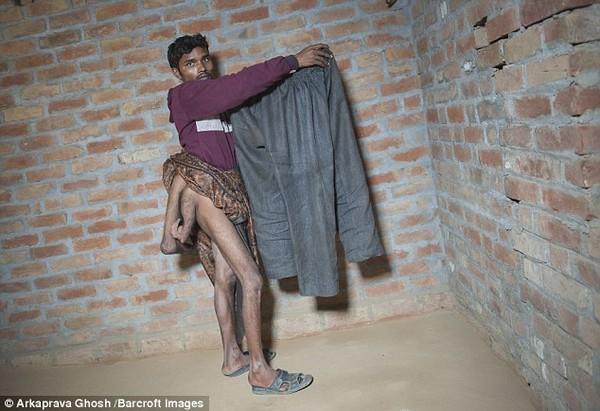 Chiếc quần của Arun có tới 3 ống, trong đó một ống dành cho 2 chân thừa (Ảnh: Barcroft).
