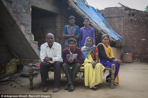 Sinh ra trong một gia đình nghèo khó, Arun đã nhờ đến mạng xã hội để kêu gọi sự giúp đỡ cho tình trạng của mình và đã được đáp lại.