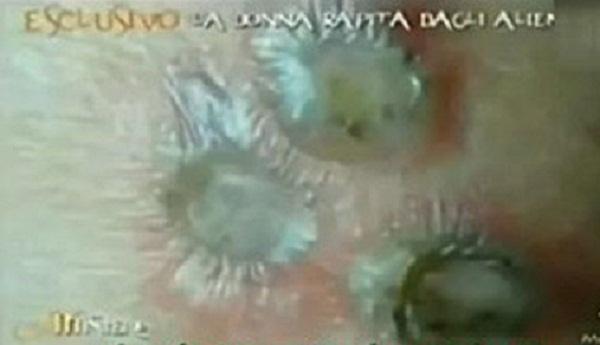 Ba vết sẹo quái dị trên cơ thể Giovanna.