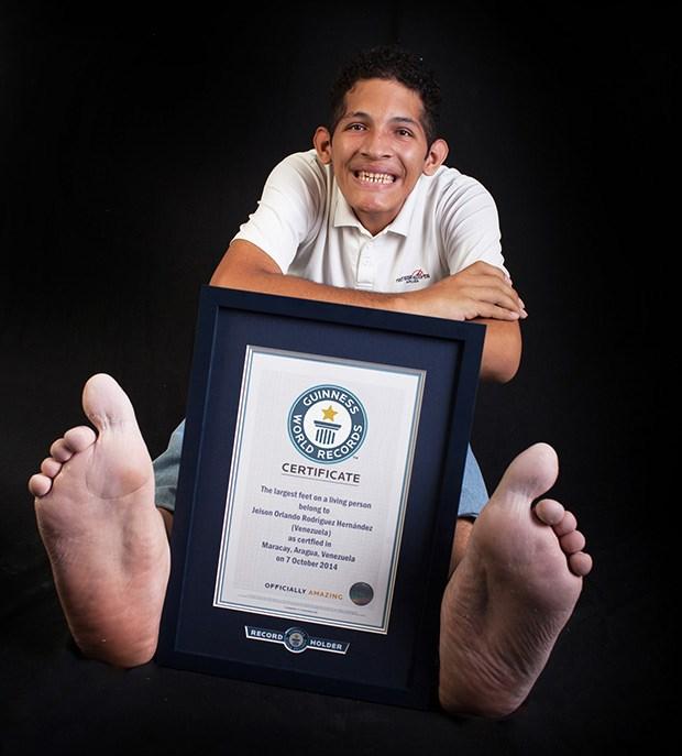 Bàn chân của anh chàng được đo vào ngày 6/10/2014 tại Maracay, Aragua, Venezuela và hiện tại anh được đưa vào sách kỷ lục Guiness thế giới 2016.
