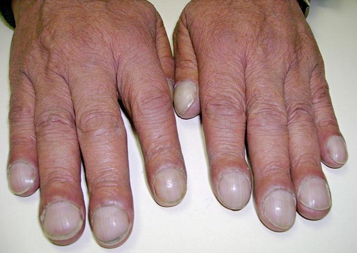 Bệnh-lý-xương-khớp-phì-đại-ngón-tay-dùi-trống-và-viêm-màng-xương