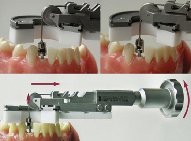 Benex-extraction-system1