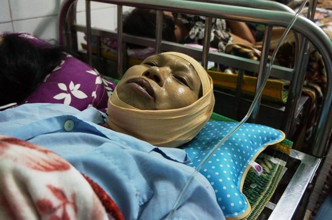 Bà Nguyễn Thị Miến nằm điều trị tại Bệnh viện đa khoa tỉnh Thái Bình. Ảnh: Nguyễn Dương.
