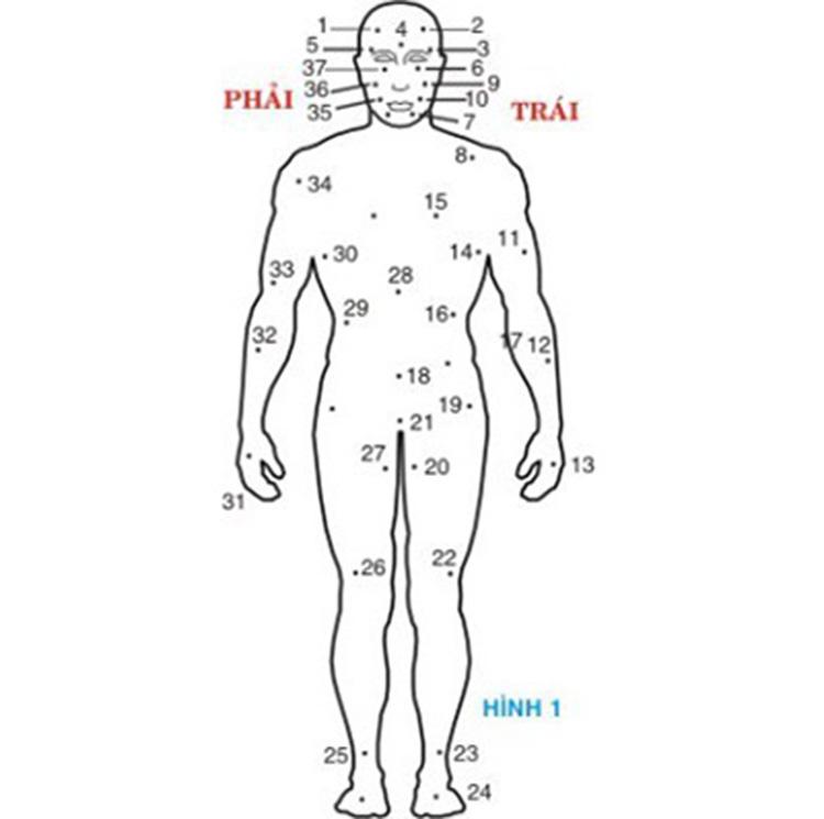 Vị trí các nốt ruồi trên thân thể