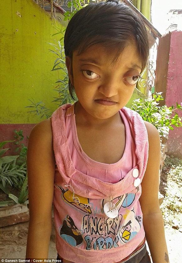 Shaili Kumari có đôi 'mắt ếch' khiến nhiều người tránh xa rất tội nghiệp.