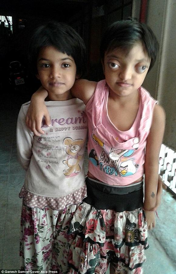 Shaili chụp ảnh với chị gáiSaloni, 8 tuổi. Bé Saloni rất thương và bảo vệ em mình. Khi Shaili phải cạo đầu để tiến hành kiểm tra sức khỏe, Saloni cũng cạo tóc để ủng hộ tinh thần em gái.