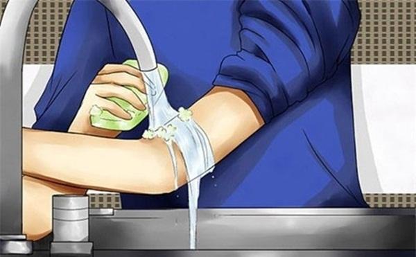 Cách tốt nhất khi bị đốt là nhanh chóng rửa sạch vết thương bằng xà phòng nhằm trung hòa axit do bọ xít tiết ra rồi di chuyển nhanh tới trung tâm y tế gần nhất để được hỗ trợ.