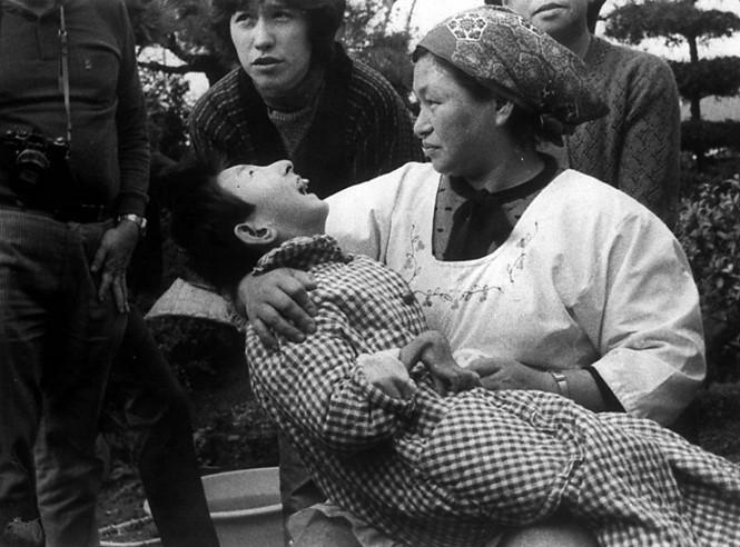 Một nạn nhân của căn bệnh Minamata.