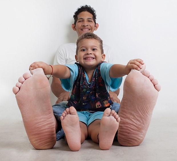 Bàn chân phải của anh đo được 40.1cm còn chân trái là 39.6cm tính tới thời điểm hiện tại.