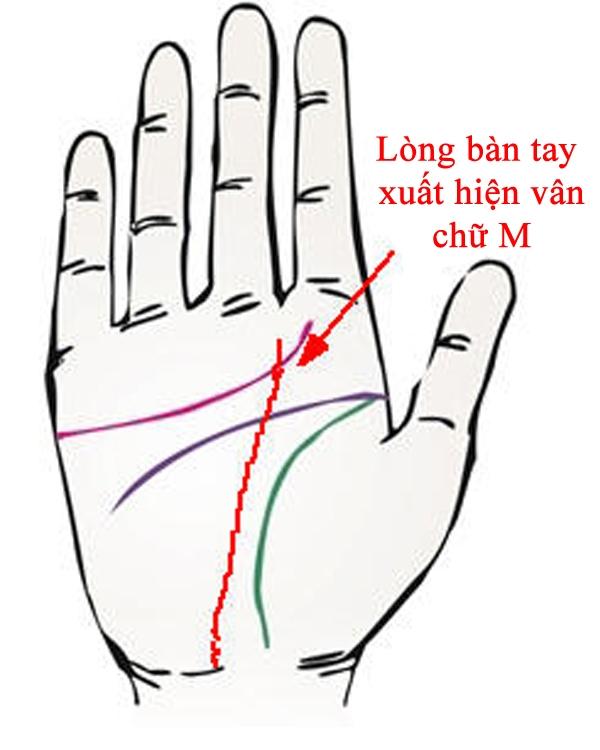 Bàn tay chữ M