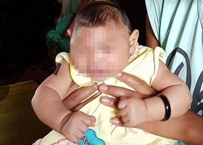 Em bé bị dị tật bẩm sinh tại Đăk Lăk. Ảnh: Người lao động.