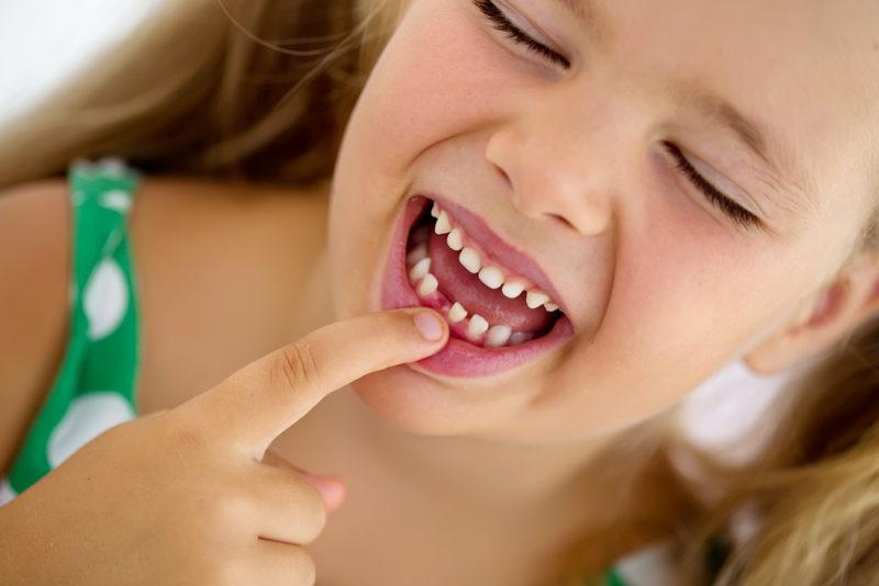 Bệnh sâu răng có rất nhiều nguyên nhân.