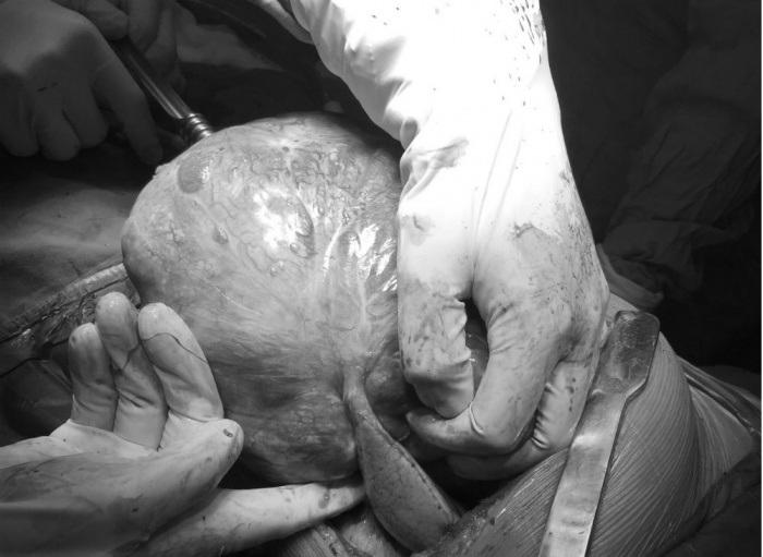 Bác sĩ lấy khối u cho bệnh nhân