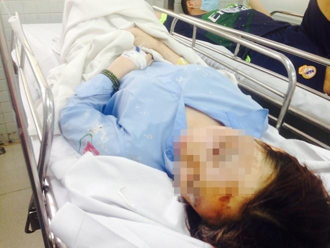 Nữ sinh bị tạt axít đang được cấp cứu.