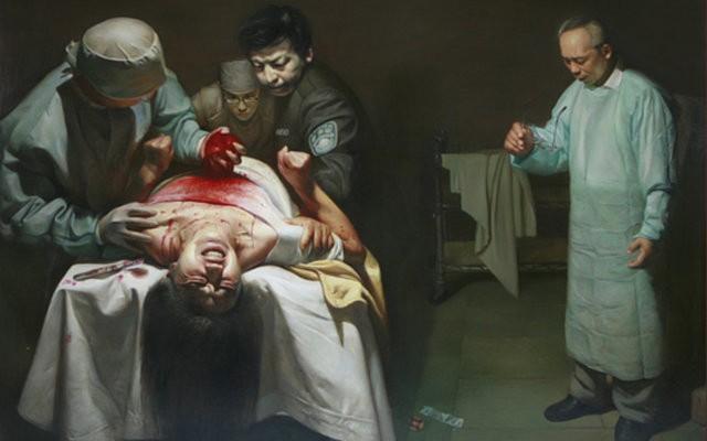 Mổ cắp nội tạng sống tại các bệnh viện Trung Quốc, một tội ác chưa từng có trong lịch sử. (Ảnh: Internet)