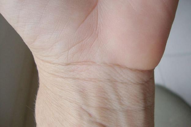 Ngấn cổ tay