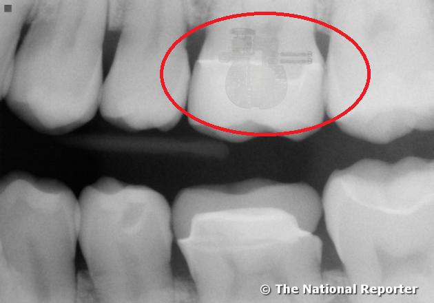Công nghệ của người ngoài hành tinh được tìm thấy trong răng người?