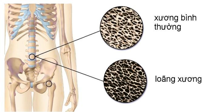 Phòng ngừa loãng xương thông qua các loại thực phẩm sau đây.1
