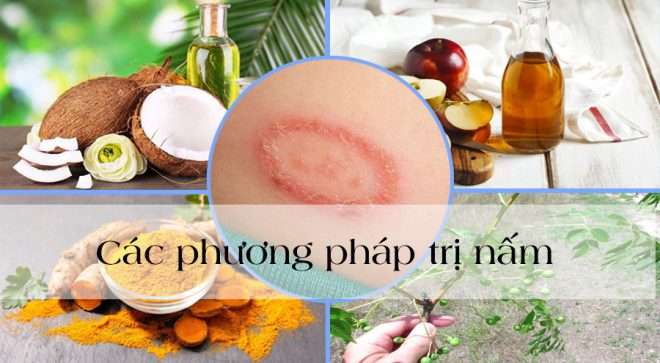 Các phương pháp tự nhiên trị nấm và nhiễm trùng da nhanh chóng, hiệu quả