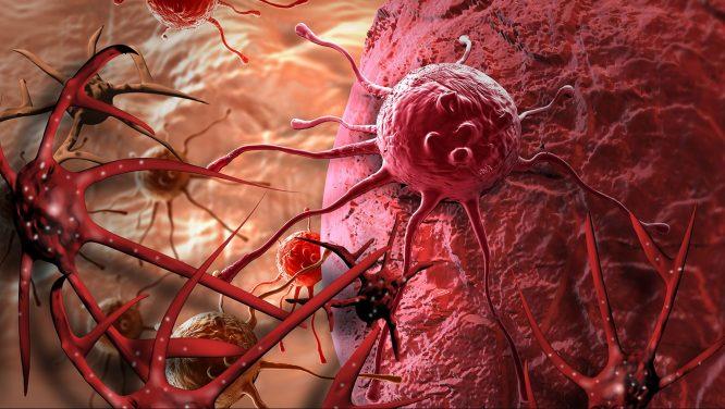 Lời thức tỉnh từ thế giới vi quan (P1): Cơ chế hư hỏng của tế bào ung thư.2