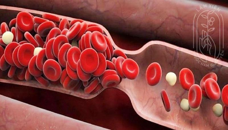 Mạch máu tắc nghẽn gây nguy hiểm cho sức khỏe (Nguồn: Internet)