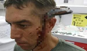 Người đàn ông bị con dao cắm xuyên đầu, vẫn tỉnh táo đạp xe tìm bác sĩ