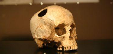 Hộp sọ bị khoét cho thấy người cổ đại 3.000 năm trước đã biết phẫu thuật não